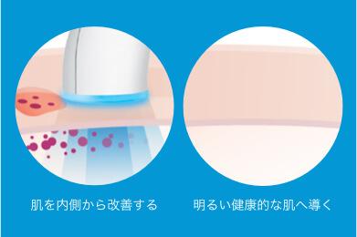 アクネリークリアブルーライト:ブルーライトの効果